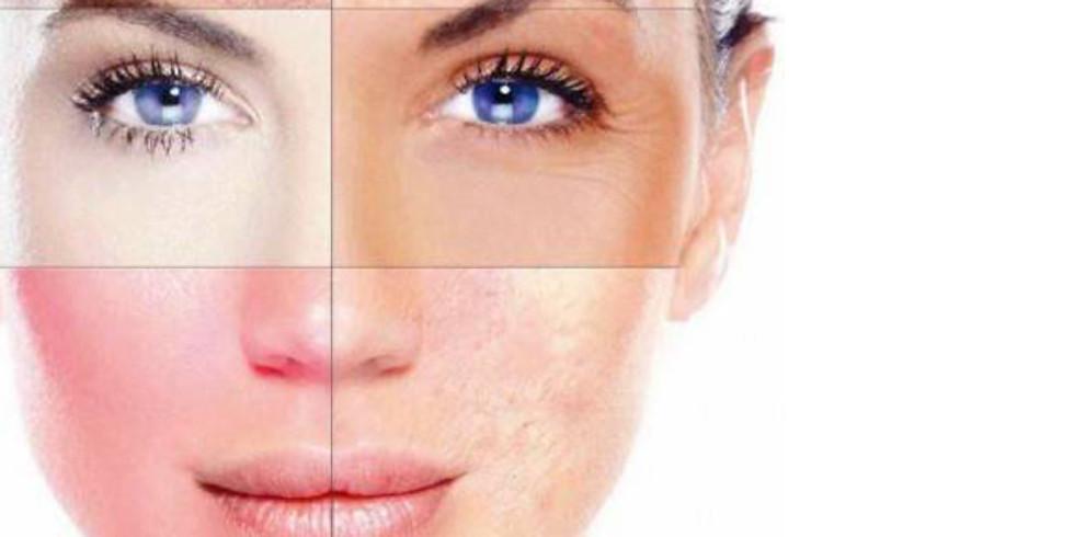 Skin analysis presentation.