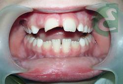 3_-_traumatismo_dentário_em_dente_permanente
