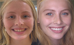 Dental Veneers Patient - Before and After