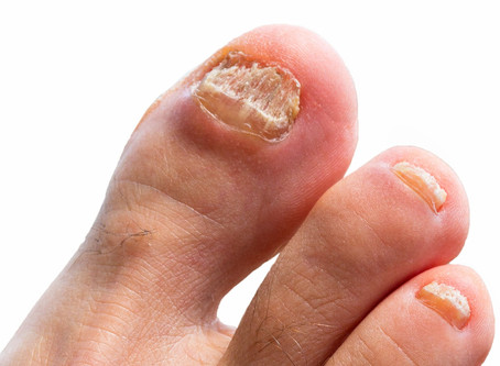 Ignore Toenail Fungal Infections at your Peril