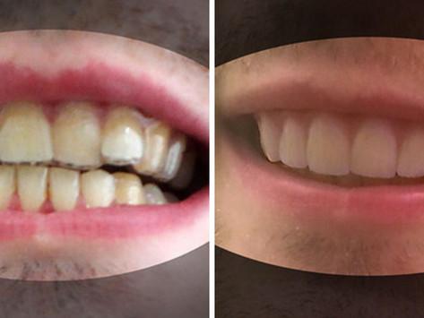 Printing Your Teeth Straight