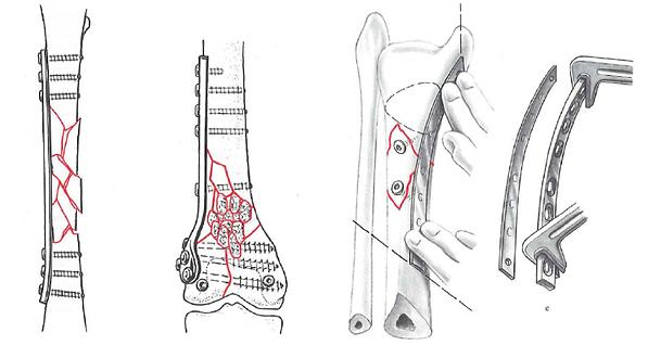 Examples-of-bone-plates-left-a-bridging-