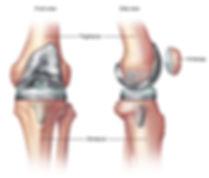 kneereplacementsurgery-3465178-001-0-8co