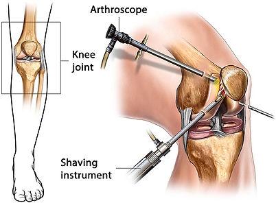 arthroscopy-illustration-8ee5e5.jpg