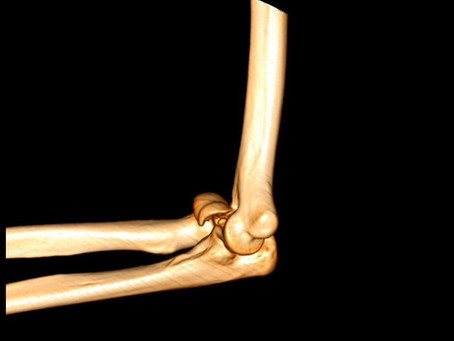 Complex Elbow Injury- Reverts to Normal after Surgery.