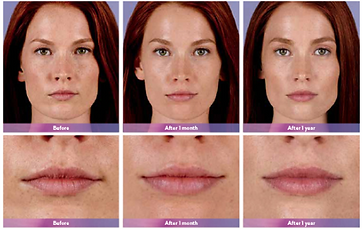 Juvederm Ultra XC Pic.png