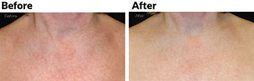 limelight-facial-before-and-after-chest.