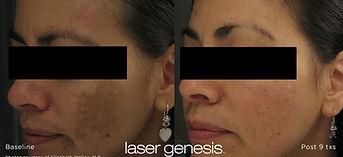 xeo_lasergenesis_1 (2).jpg
