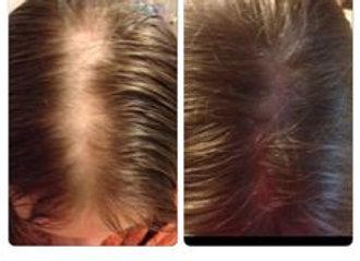 Rapid Hair Loss Growth Spray Rosemary
