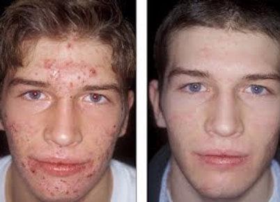 Acne Treatment Cream Salicylic Acid 20ml