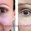 Thumbnail: Eye Renew Ointment