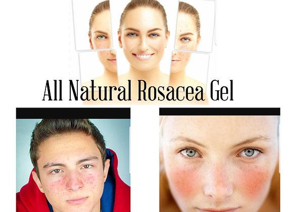 Rosacea Gel