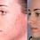Thumbnail: Acne Drying Lotion 1oz