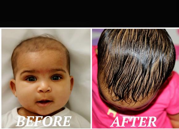 Baby Restoration Hair Growth Serum