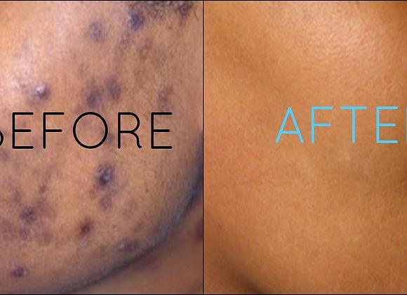 All Dark Spot Remover Creams Spf 30 1.5oz Moisturizer