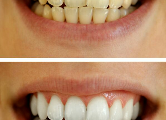 Charcoal Teeth Whitening Treatment