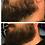 Thumbnail: Beard Extreme Growth Oil