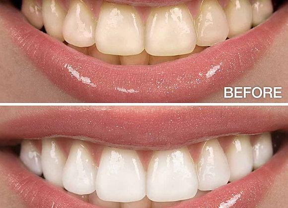 Charcoal Whitening Treatment