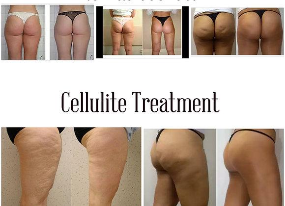 Cellulite & Fat Reducing Oil