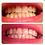 Thumbnail:  Charcoal Teeth Whitening Treatment