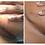 Thumbnail: Scar Treatment Silicone Strip