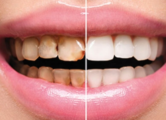 Teeth Bleaching Peroxide 35% Treatment Whitening
