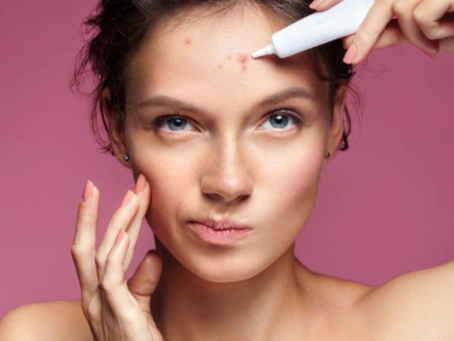 7 Reasons Why Your Acne Isn't Going