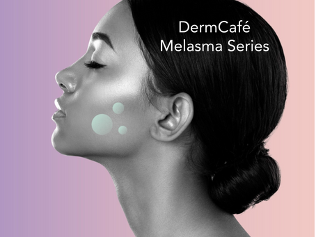 DermCafé's Melasma Series: Causes and Treatments