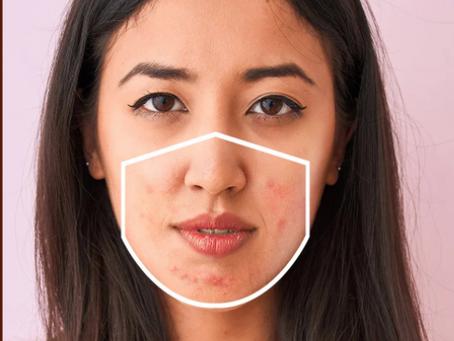 Is Maskne Real?