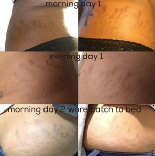 Amazon review stretch marks before and after 3 days