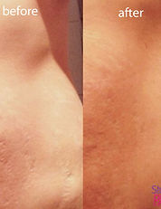 Before and after results