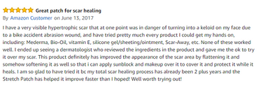 Amazon review StretchPatch