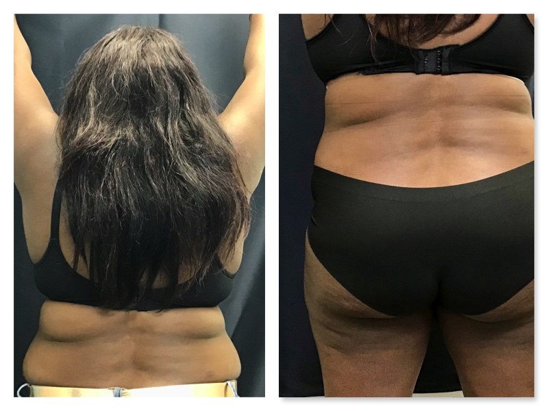 sculpsure back april to july