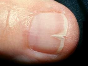 What Causes Split nails and what can I do?