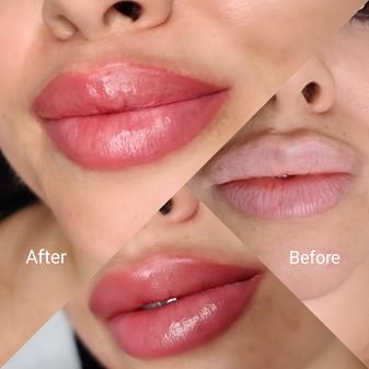 מיקרופגמנטציה שפתיים