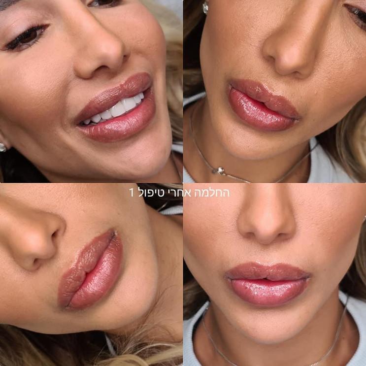 הדגשת שפתיים לאחר החלמה שנייה