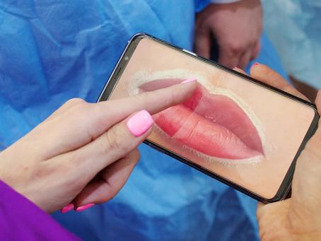 איפור קבוע שפתיים החלמה