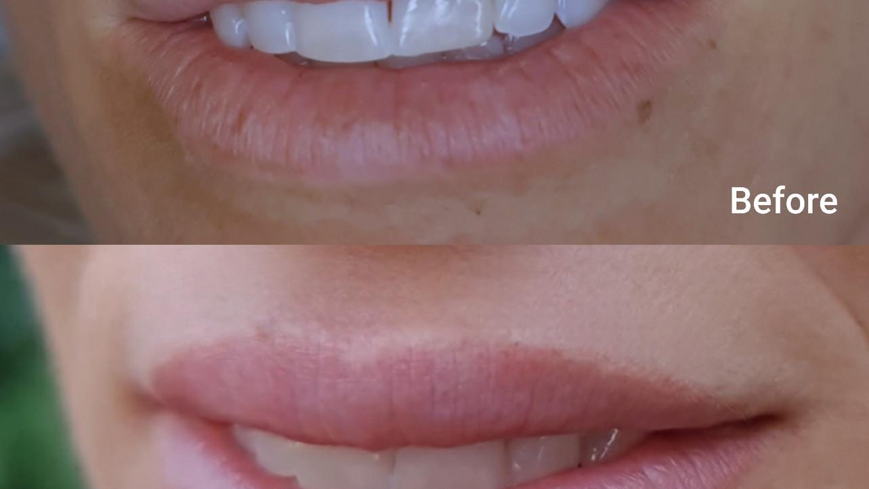 תיקון אי סימטריה בשפתיים