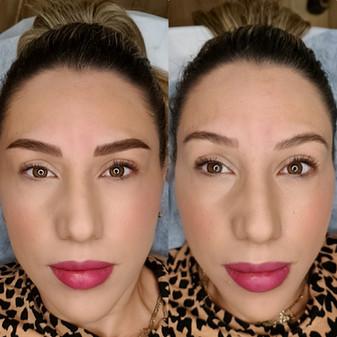 גבות לפני ואחרי