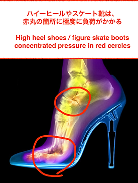 ハイヒール靴の足の負担