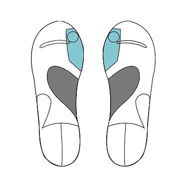 甲高足の人のカタムパーツの貼り方