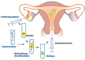csm_kinderwunsch_Fertilisation.jpg