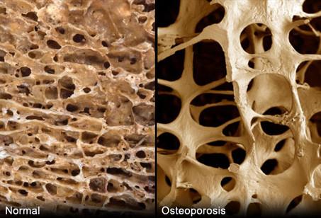 O que você precisa saber sobre a osteoporose