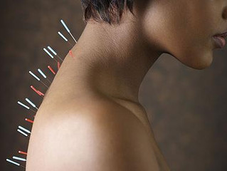 Acupuncture's effect 'isn't just psychological - Lifeline Acupuncture, Davis, Carmichael