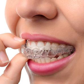durchsichtige Zahnspange/Aligner für Erwachsene
