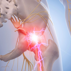 """Sciatica, or are your butt muscles literally being a """"pain in the ass""""?"""