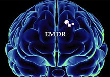 What-is-EMDR-Therapy-e1483012656746.jpg