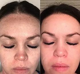 Marketing - Rhonda Allison before and pe