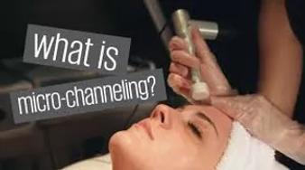 Procell What is Microchanneling.webp