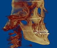 двучелюстная хирургия, ортогнатия, исправление прикуса